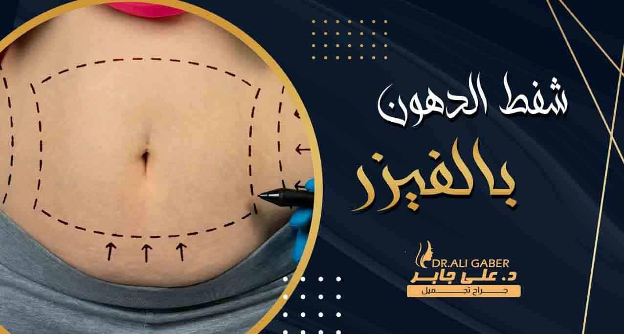 عملية شفط الدهون بالفيزر للجسم مشدود بدون ترهلات