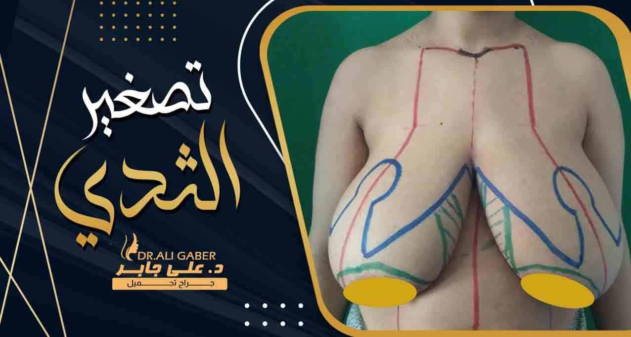 تفاصيل عملية تصغير الثدي : الشروط والإجراءات والتكلفة | دكتور على جابر
