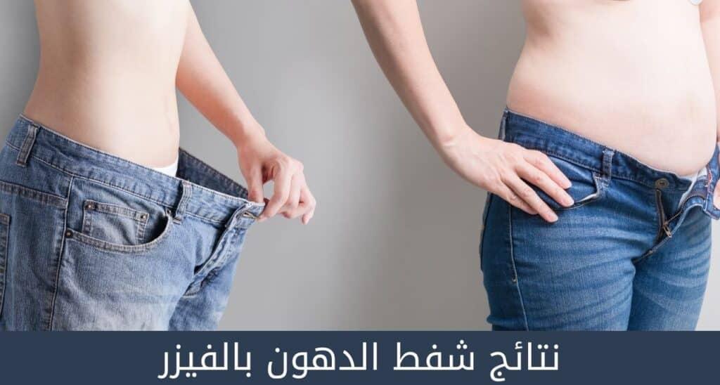 نتائج شفط الدهون بالفيزر