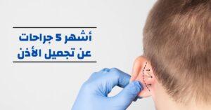 أشهر 5 جراحات عن تجميل الأذن