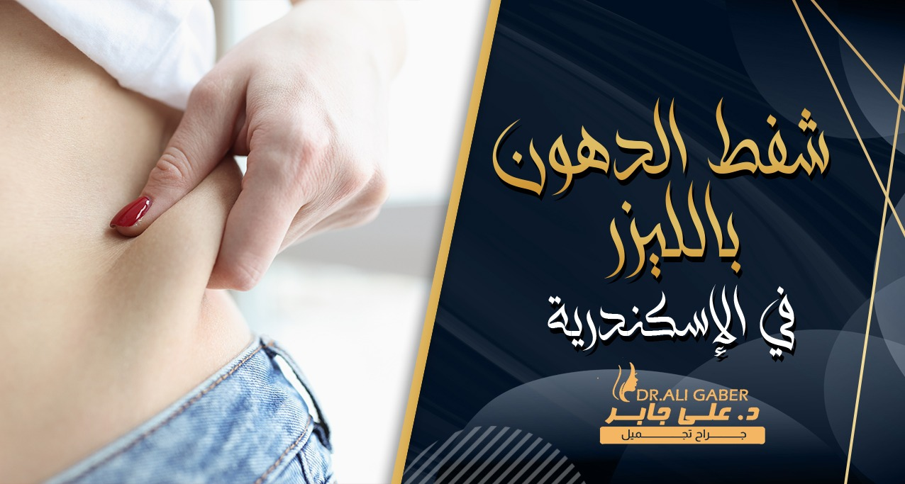 شفط الدهون بالليزر فى الاسكندرية