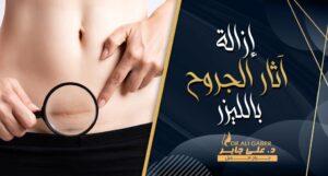 Read more about the article ازالة آثار الجروح والندبات القديمة بالليزر بالوجه واليد