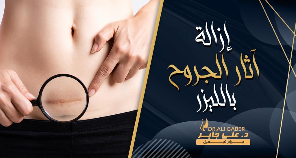 You are currently viewing ازالة آثار الجروح والندبات القديمة بالليزر بالوجه واليد