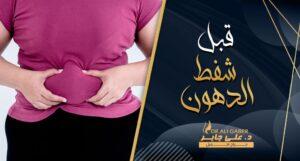 Read more about the article قبل وبعد شفط الدهون .. ماذا يجب أن تعرف عن العملية ؟