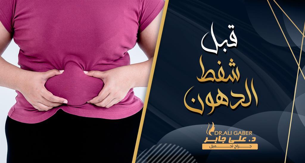 You are currently viewing قبل شفط الدهون ماذا يجب أن تعرف عن العملية | دكتور علي جابر