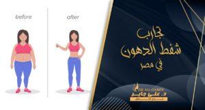 Read more about the article تجارب شفط الدهون فى مصر | قصص نجاح