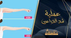 Read more about the article عملية شد الذراعين   الشروط والنتائج والتكلفة