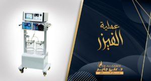 Read more about the article عملية الفيزر لشفط الدهون ونحت القوام